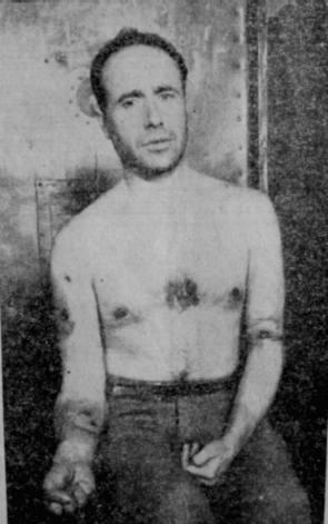 Foto que evidencia la tortura que el periodista Javier Bueno sufrió en la cárcel.